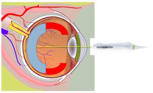 missing-retina-edges